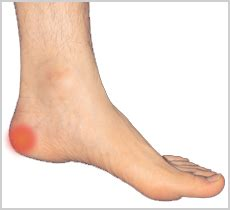 Heel spur - Causes, Symptoms, Exercises, Treatment and