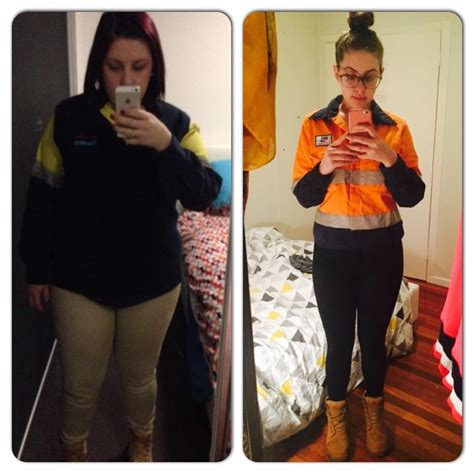 Stacey - Before & After - Lost 30kg - Lap Surgery Brisbane